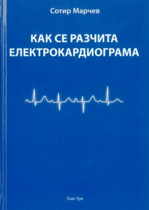 Кака се разчита кардиограма