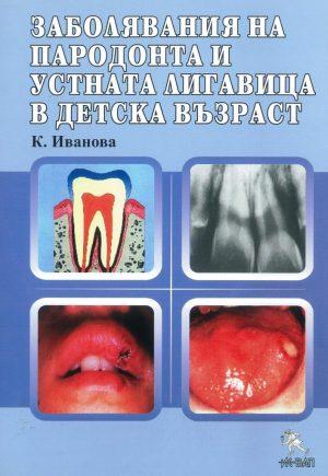 Забиляване на пародонта и устната лигавица в детска възраст